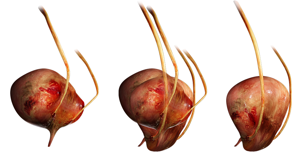 Gebärmuttersenkung Operation